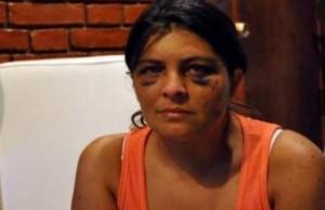 "Laura Girala:""me quisieron matar"""