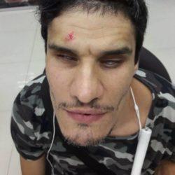 Federico Estrella sufrió un incidente al obstruirse una vereda